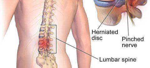 Anatomía de la espalda y cómo cuidarla