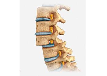 Desplazamiento de vértebra lumbar