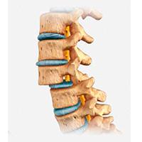 Desplazamiento de vertebras