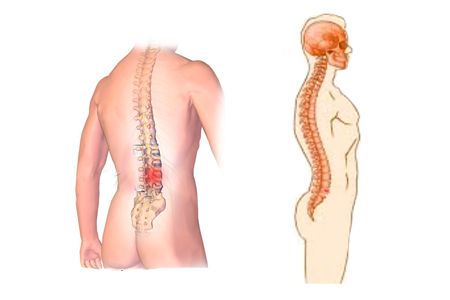 Desplazamiento de vértebras