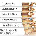 protusión disco osteofitaria